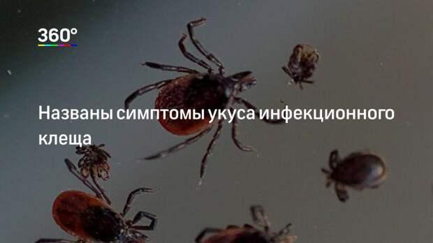 Названы симптомы укуса инфекционного клеща