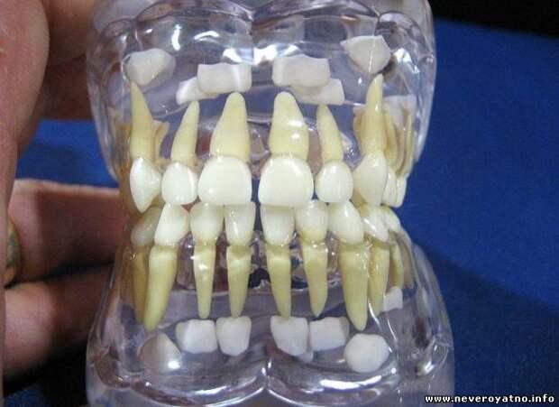 Стоматологическая сенсация: новые зубы можно вырастить в любом возрасте