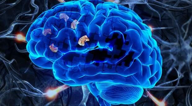 Американские ученые разработали лекарство от болезни Альцгеймера