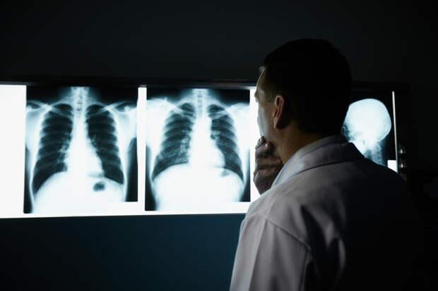 Главный онколог России объявил о резком росте заболеваемости раком