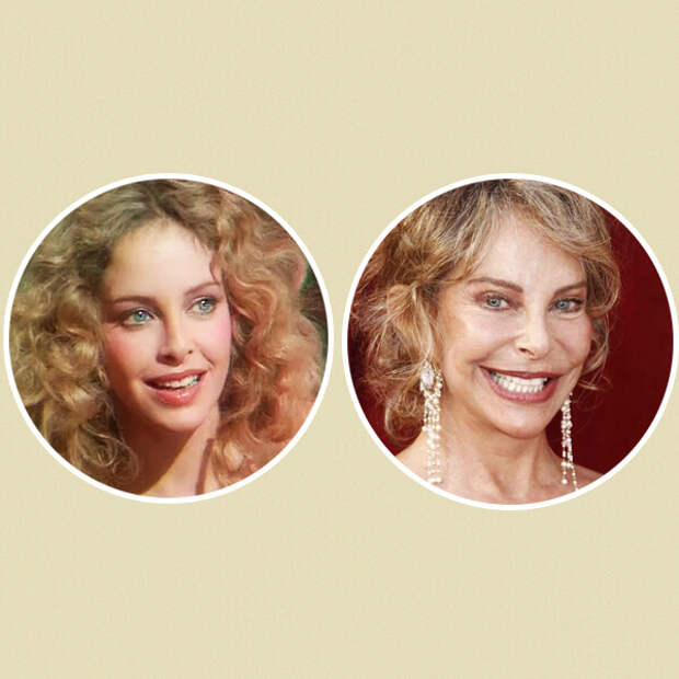 Лара Флинн Бойл и другие знаменитости, испортившие лицо пластическими операциями