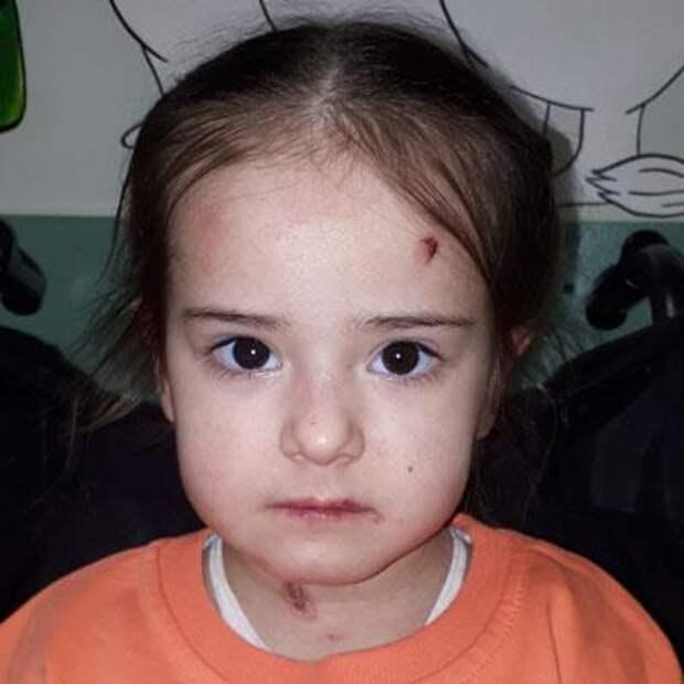 Варя Жирицкая, 3 года, буллезный эпидермолиз, требуется лечение, 111128₽