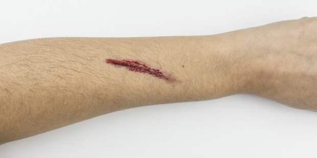 Первая помощь при кровотечении: это должен знать каждый