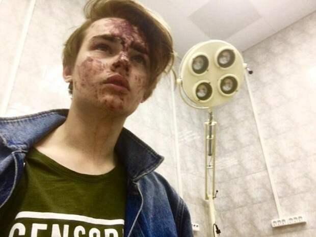 Жестоко избитая звезда «Дома-2» попала в больницу: шокирующие фото
