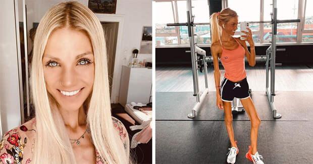 Немка, рассказывавшая винстаграме оборьбе санорексией, умерла ввозрасте 24 года