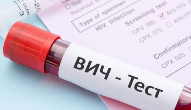В Севастополе желающие могут сделать экспресс-тест на ВИЧ