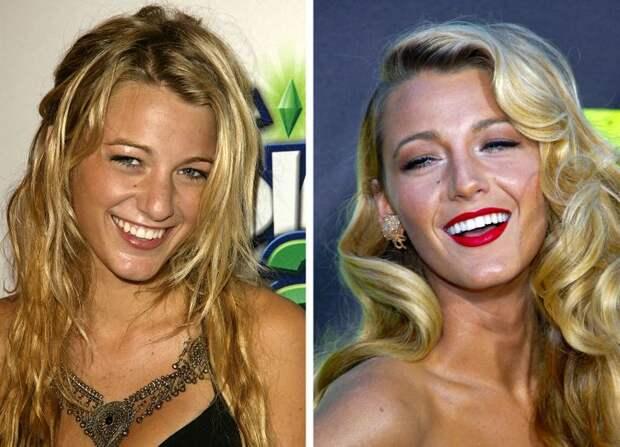 12 знаменитостей, которые выложили за белоснежную улыбку целое состояние