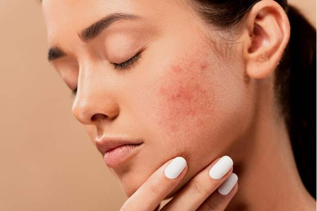 acne-5561750-Middel
