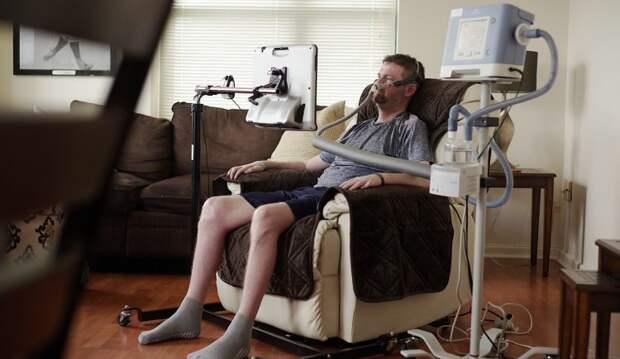 Болезнь Лу Герига (БАС): симптомы, причины и лечение