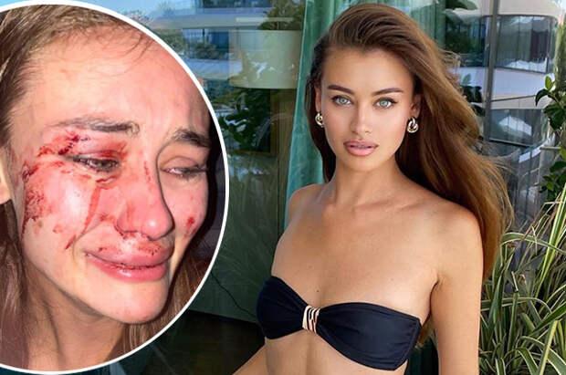 Украинская модель Дарья Кирилюк рассказала, что ее жестоко избили в Турции