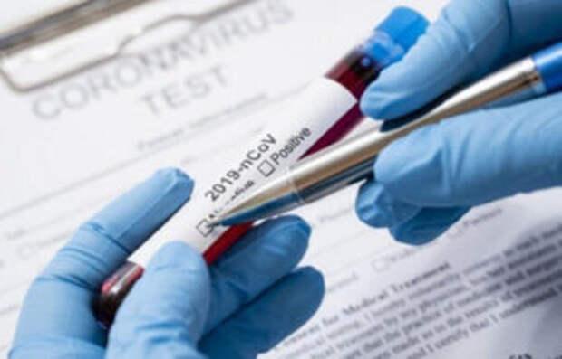 Коронавирус в РК: За прошедшие сутки выявлено 967 заболевших