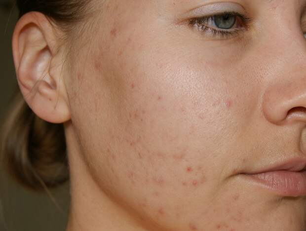 Проблемную кожу нужно лечить, а не запускать. / Фото: aloeinfo.ru