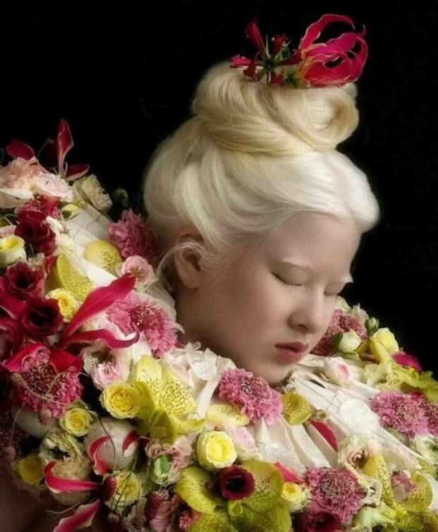 Брошенная в младенчестве из-за альбинизма Сюэли выросла, чтобы стать моделью Vogue