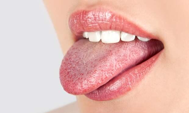 О чем сигнализирует белый налет на языке?