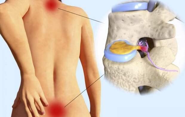 Секрет боли в спине находится в ногах. 10 упражнений, которые исправят все