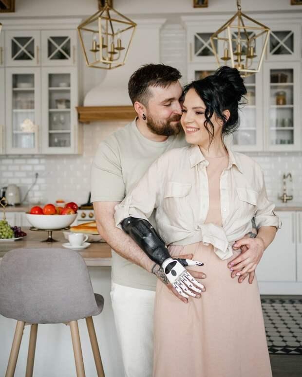 Маргарита Грачева, которой муж отрубил руки, беременна