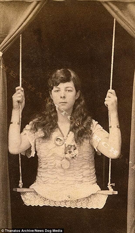 Девочка без ног, 1880-е годы деформация, люди