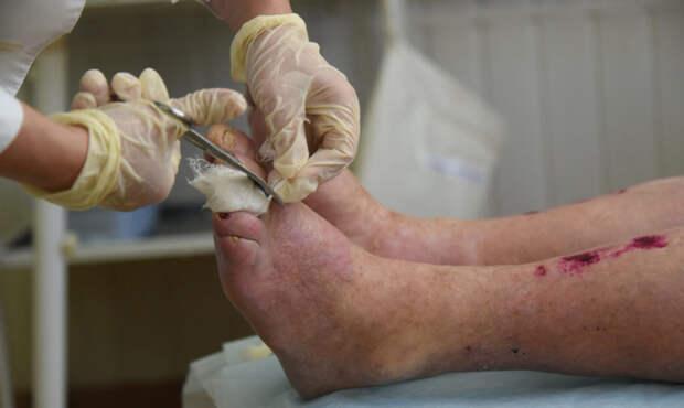 Лепра никуда не делась — людям надо лечиться. Но НИИ по изучению болезни закрывают