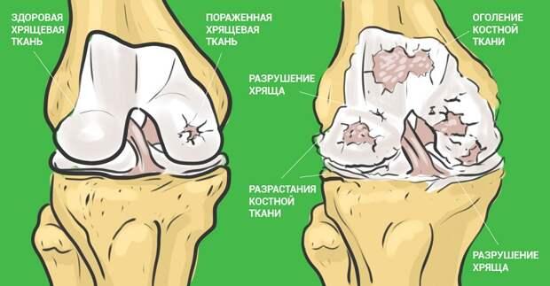 как принимать желатин для лечения суставов