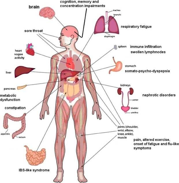 Главные симптомы синдрома хронической усталости