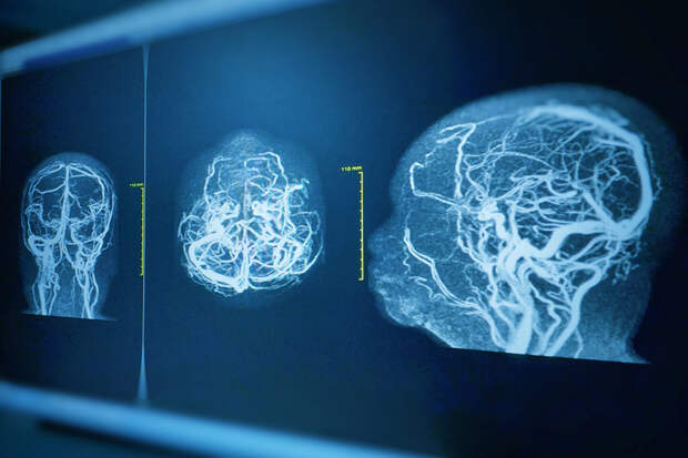 Учёные выявили первый признак риска кровоизлияния в мозг