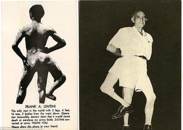 Фрэнк Лентини, который родился с тремя ногами, стал знаменит в США. Его называли не иначе как «Король». Гвоздем его выступления было набивание футбольного мяча третьей ногой деформация, люди