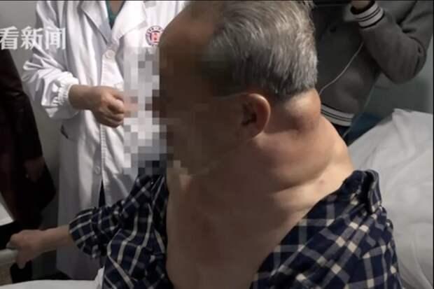 30 лет пьянства превратили мужчину в «Халка» болезнь, в мире, люди, настойка, опухоль