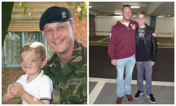 Британский солдат собрал деньги наоперацию для мальчика изБоснии, который родился средким дефектом налице