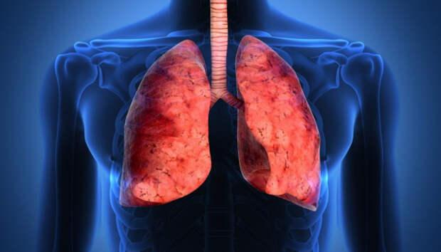 В Карелии еще 13 человек помещены в стационар с пневмонией