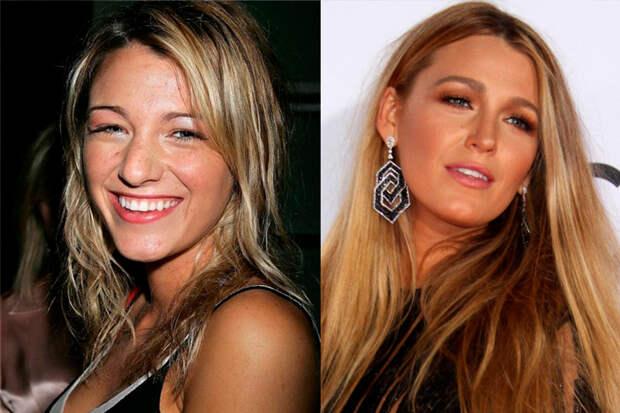 5 знаменитостей, которые стали только красивее после пластики
