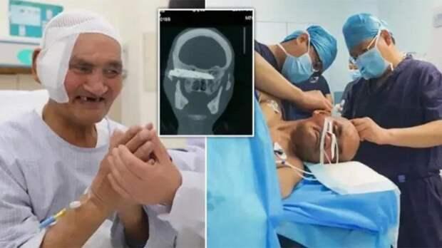 В Китае из головы мужчины вытащили нож, который был там 26 лет