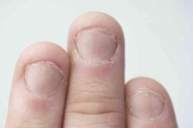 Вот какую тревожную правду о вашем здоровье скрывают ваши ногти