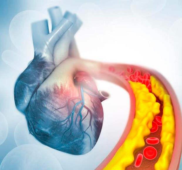 Как снизить уровень «плохого» холестерина и повысить уровень «хорошего»