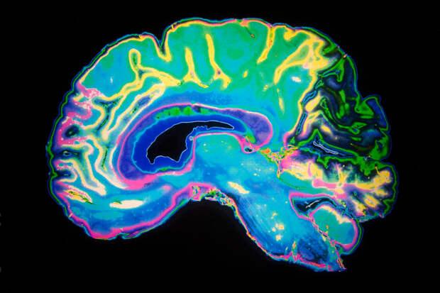 50 фактов о мозге, разъясняющих, как он устроен и работает