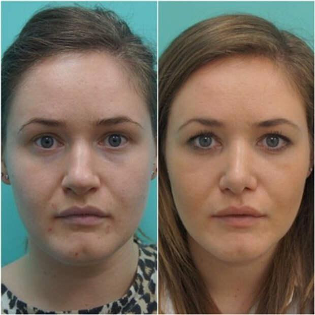 Что происходит с лицом людей, когда они удаляют комки Биша. 10 фото до и после