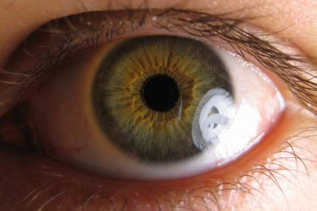 Targeted gene therapy may protect against vision loss from glaucoma, diabetes, study says