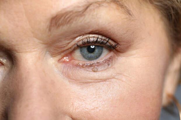 Смотрит, не моргая: назван ранний симптом болезни Паркинсона