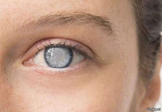 катаракта у человека