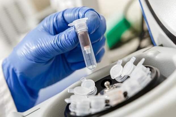 На Украине за сутки выявили более 10 тысяч случаев заражения коронавирусом