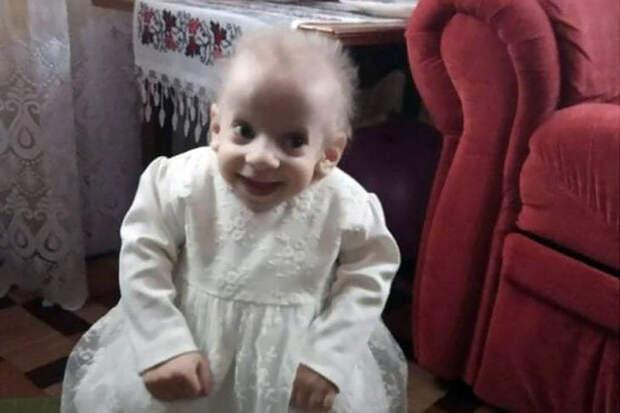 На Украине от преждевременного старения скончалась восьмилетняя девочка