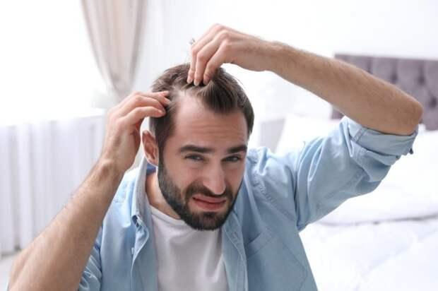 Пересадка волос: особенности и преимущества