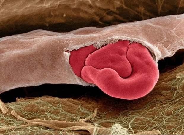 10. А это - поврежденный капилляр с красными кровяными тельцами внутри