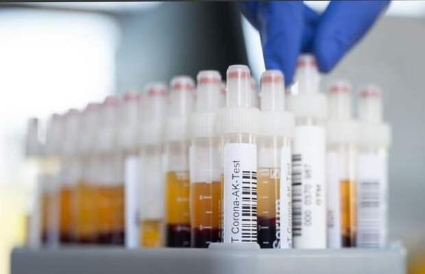 В России за сутки зарегистрировали 8 489 новых случаев заражения COVID-19