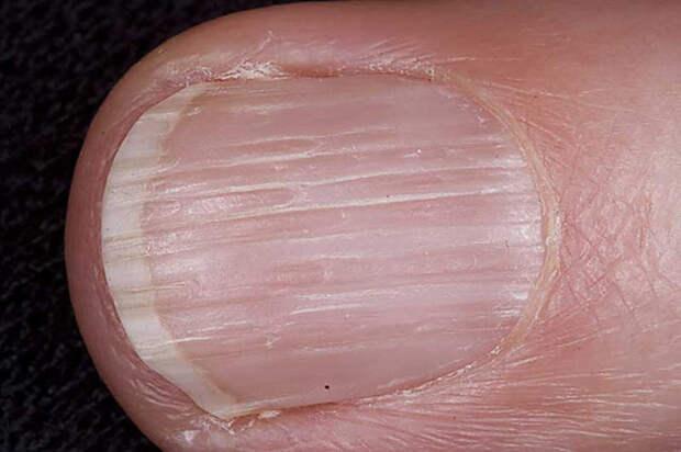 Поперечная бороздка на ногте (одна) болезнь, организм