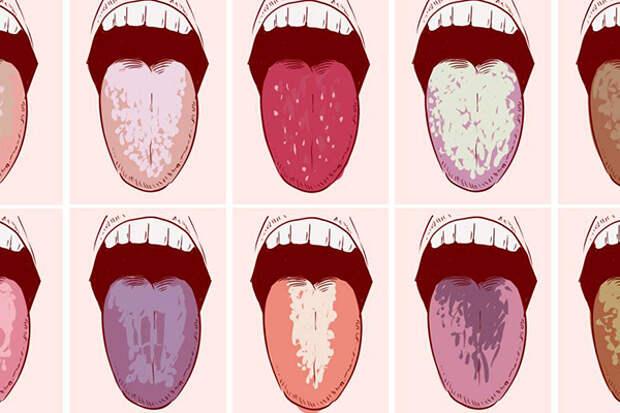 О чём расскажет цвет налёта на языке