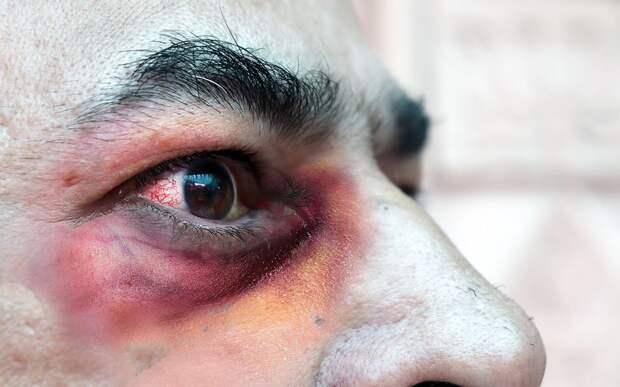 «Черная плесень»: что за болезнь, чем опасна, как себя защитить - разбираемся с доктором Комаровским