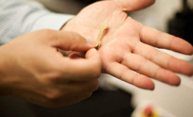 Создана биоинженерная кожа, которая может полностью заменить обычную