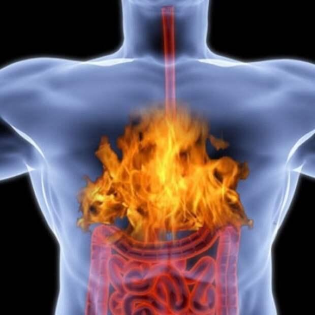 Изжога причины возникновения болезни