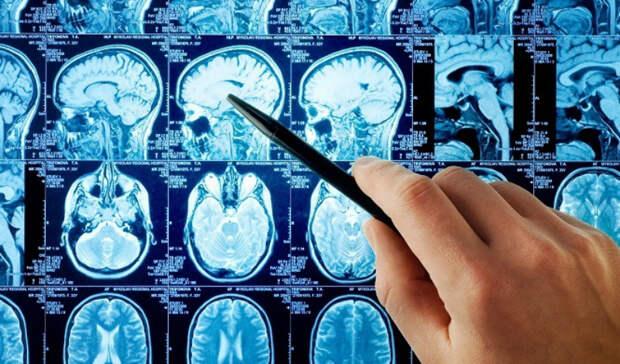 7 признаков надвигающегося инсульта: как тело предупреждает об угрозе смерти