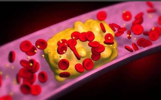 Симптом высокого холестерина нашли на лице